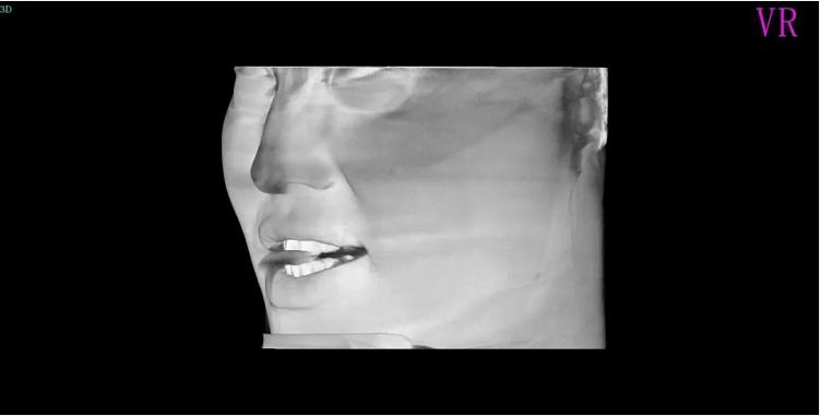 ▲头颅模型.png